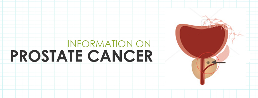 Prostate Cancer Information in Hong Kong